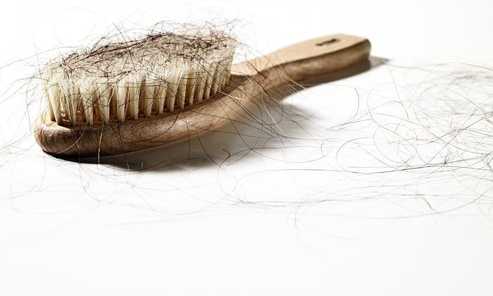 Rallentare o evitare la caduta dei capelli, è possibile ...